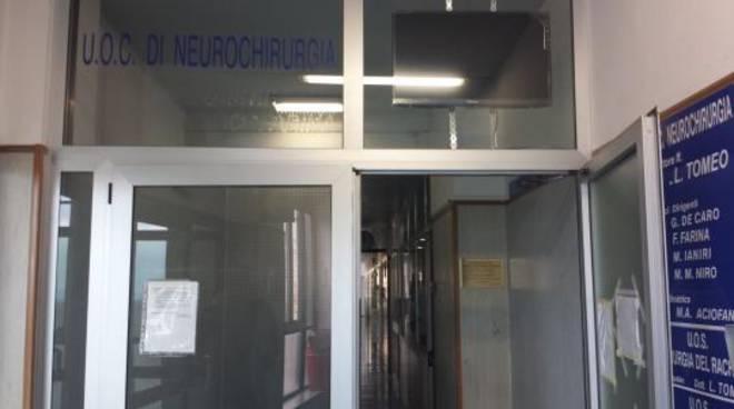 neurochirurgia cardarelli